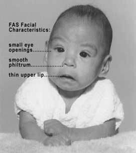 Facial Characteristics of Fetal Alcohol Syndrome